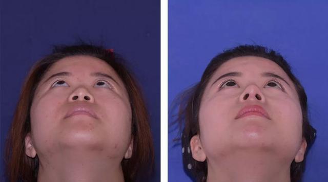 蓝莓评测 | 10分钟变美?0副作用?深度还原真实的医美鼻整形-蓝莓评测